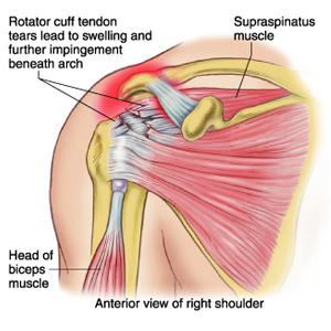 rotator cuff tear